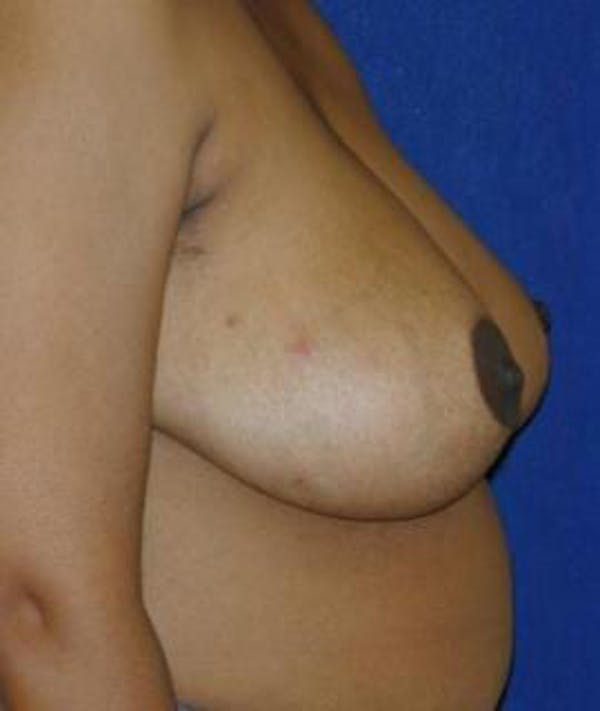 Breast Reduction Gallery - Patient 4861645 - Image 4