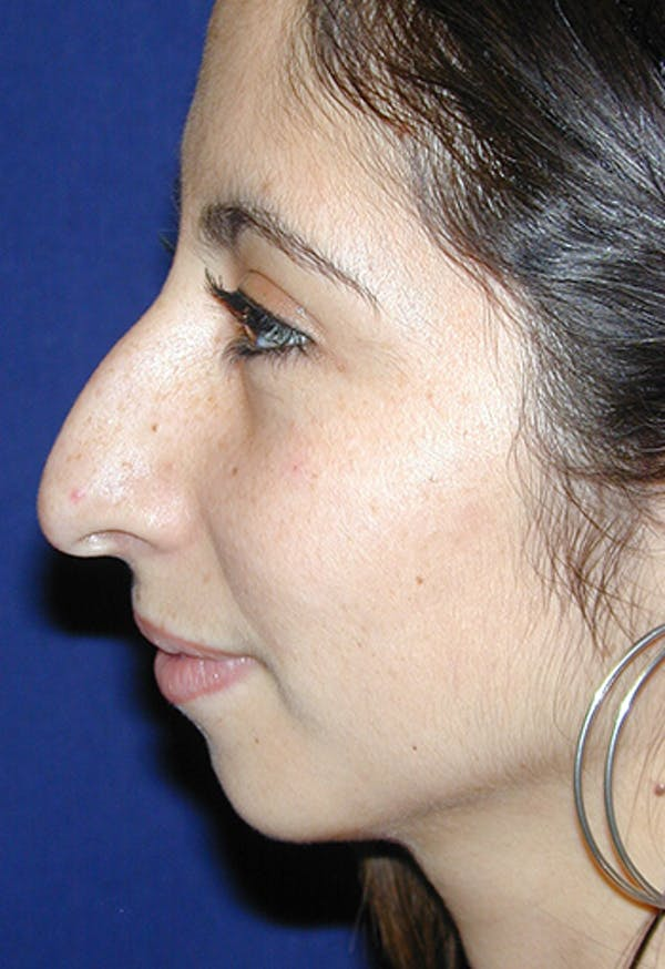 Rhinoplasty Gallery - Patient 4861646 - Image 5