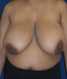 Breast Reduction Gallery - Patient 4861647 - Image 1