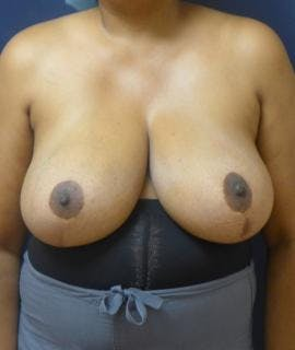 Breast Reduction Gallery - Patient 4861647 - Image 2