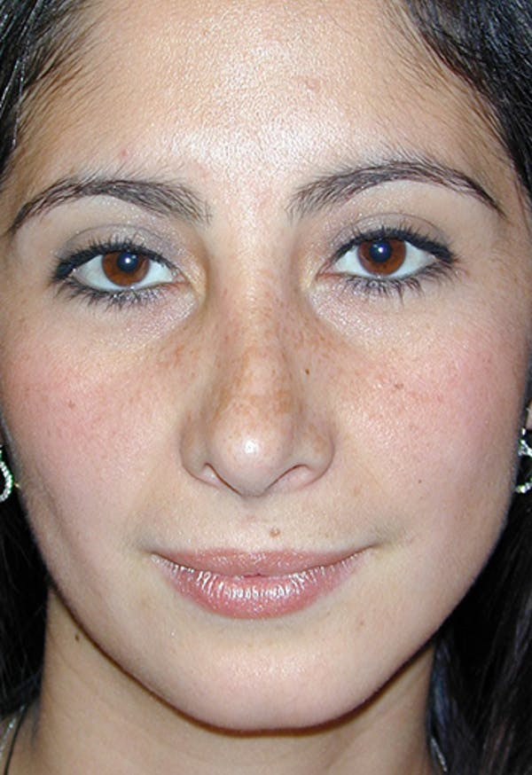 Rhinoplasty Gallery - Patient 4861650 - Image 1