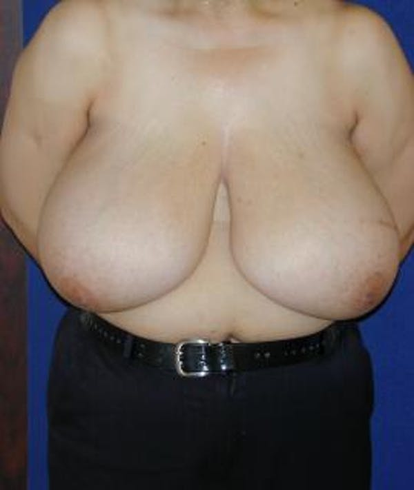 Breast Reduction Gallery - Patient 4861648 - Image 1