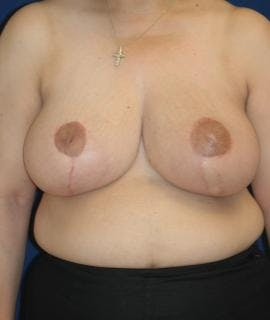 Breast Reduction Gallery - Patient 4861648 - Image 2