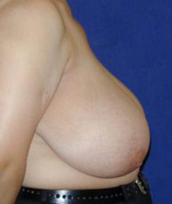 Breast Reduction Gallery - Patient 4861648 - Image 3