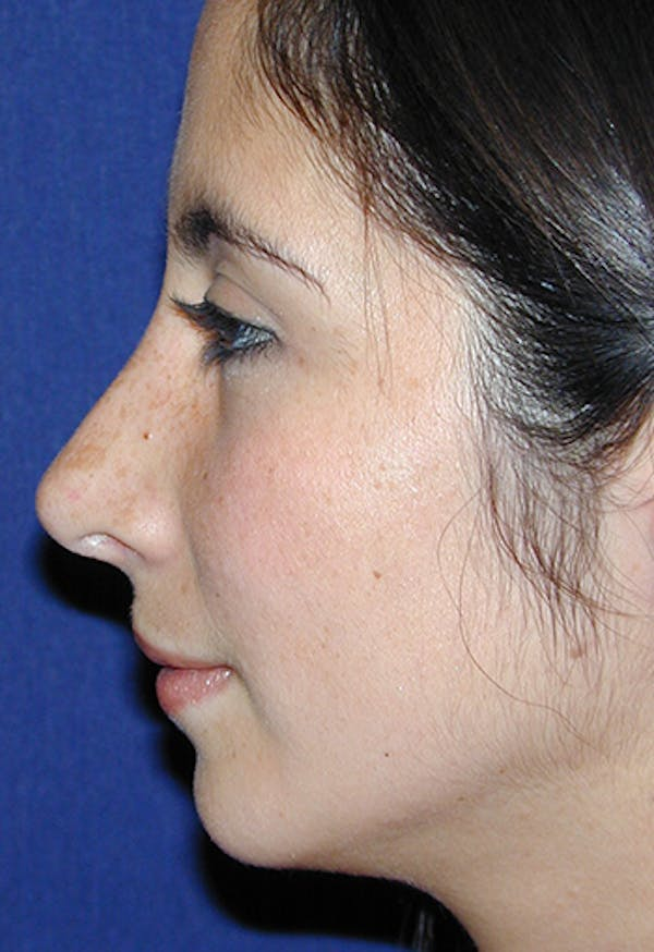 Rhinoplasty Gallery - Patient 4861650 - Image 3