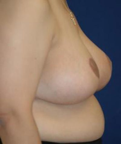 Breast Reduction Gallery - Patient 4861648 - Image 4