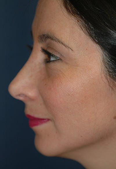 Rhinoplasty Gallery - Patient 4861650 - Image 4