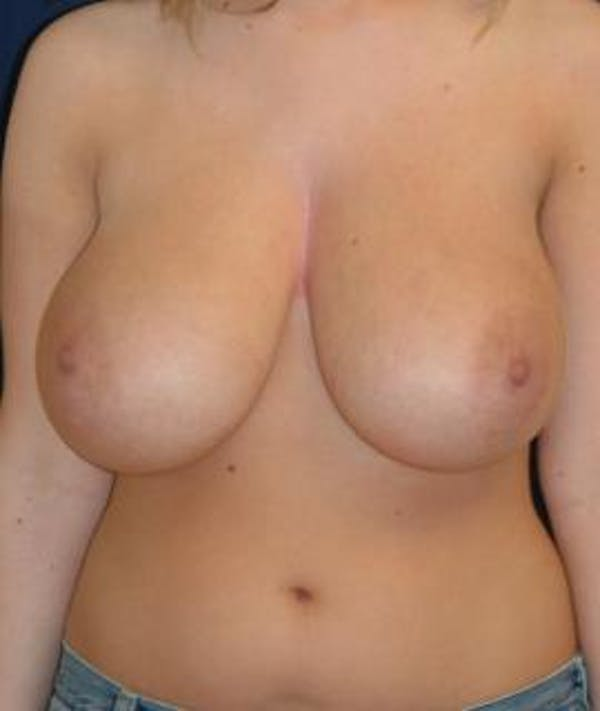 Breast Reduction Gallery - Patient 4861651 - Image 1