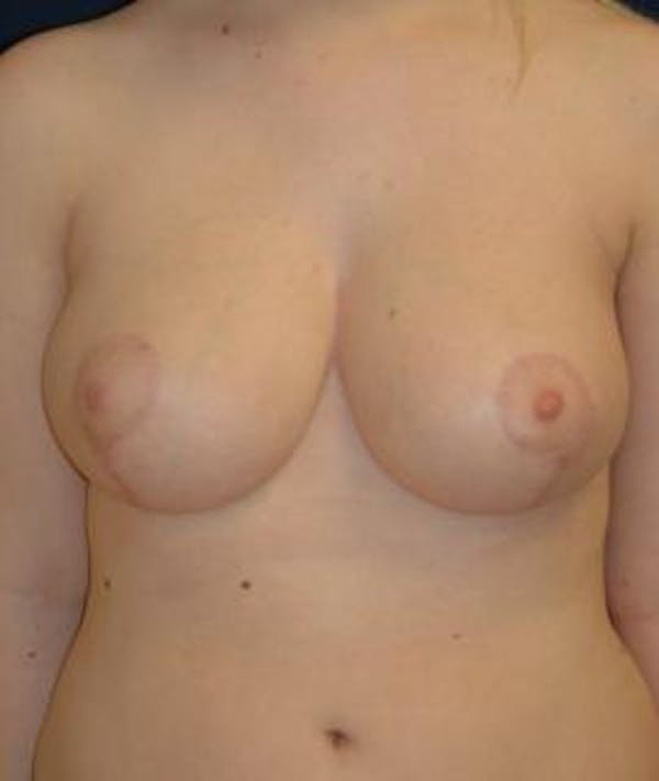 Breast Reduction Gallery - Patient 4861651 - Image 2