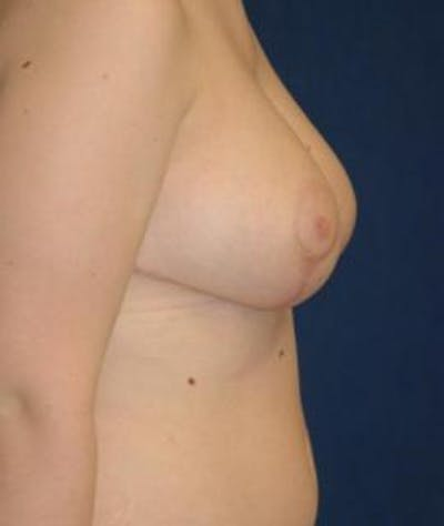 Breast Reduction Gallery - Patient 4861651 - Image 4