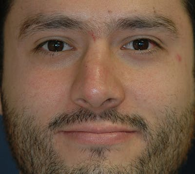 Rhinoplasty Gallery - Patient 4861653 - Image 34