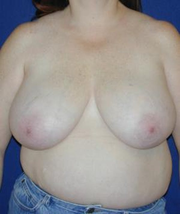 Breast Reduction Gallery - Patient 4861652 - Image 1
