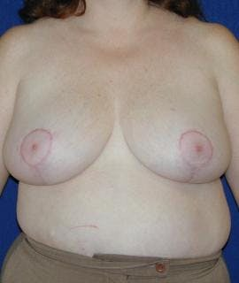 Breast Reduction Gallery - Patient 4861652 - Image 2