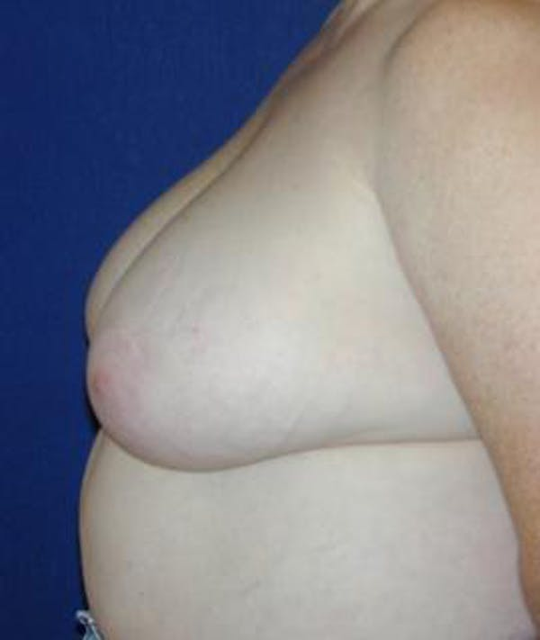 Breast Reduction Gallery - Patient 4861652 - Image 3