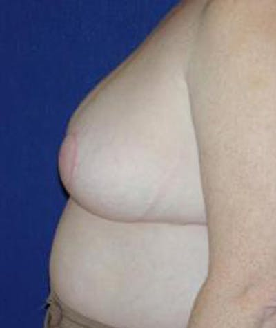 Breast Reduction Gallery - Patient 4861652 - Image 4