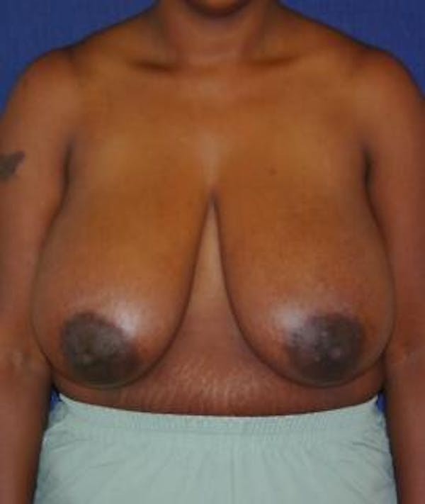 Breast Reduction Gallery - Patient 4861654 - Image 1