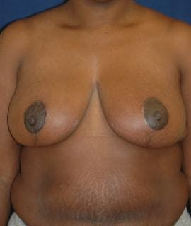 Breast Reduction Gallery - Patient 4861654 - Image 2