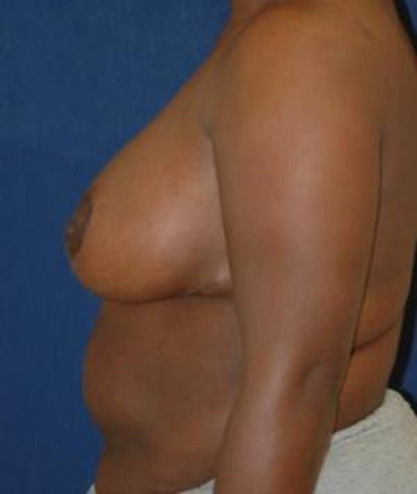 Breast Reduction Gallery - Patient 4861654 - Image 4