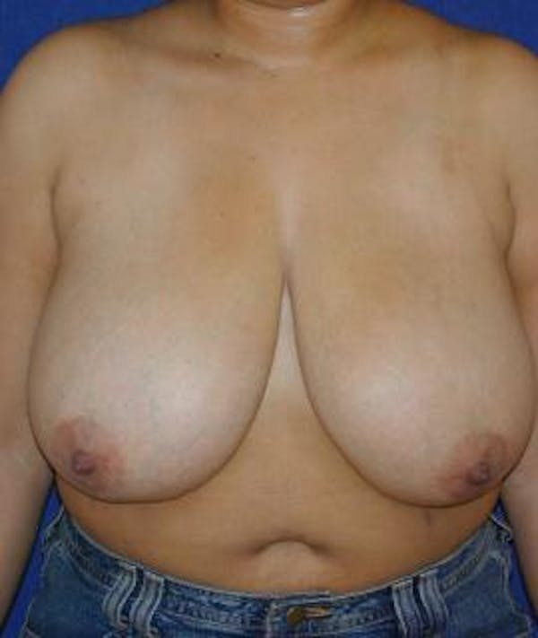 Breast Reduction Gallery - Patient 4861655 - Image 1