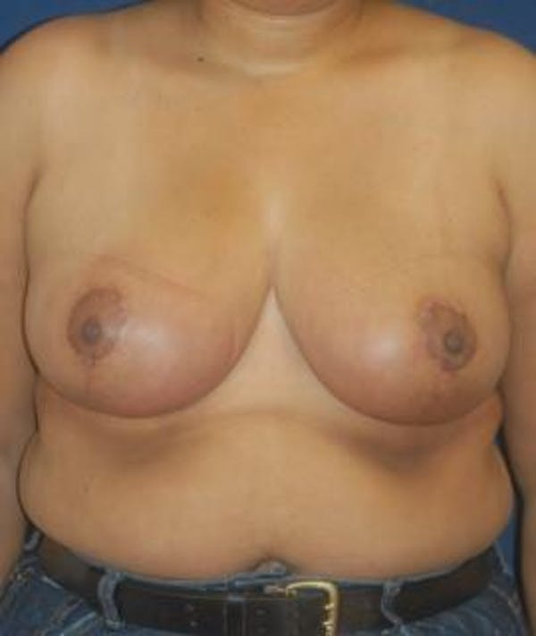Breast Reduction Gallery - Patient 4861655 - Image 2