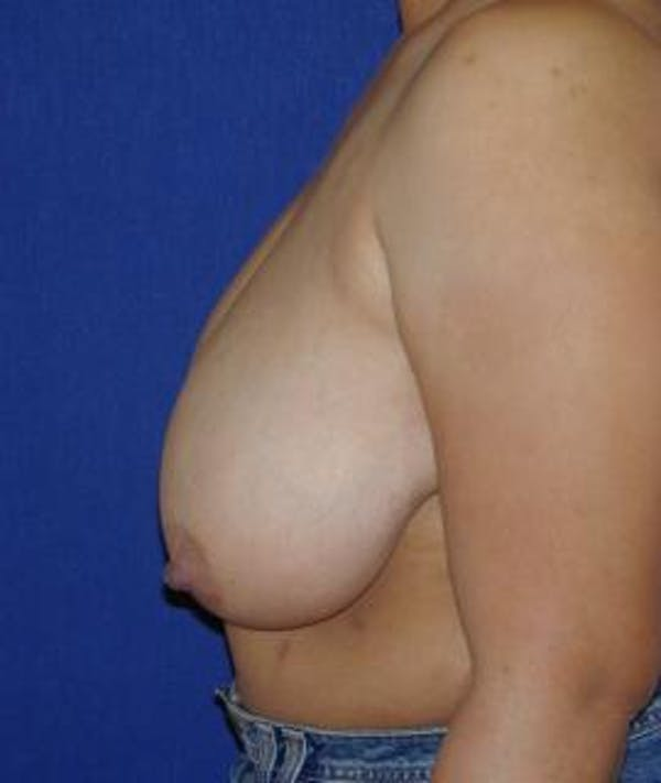 Breast Reduction Gallery - Patient 4861655 - Image 3