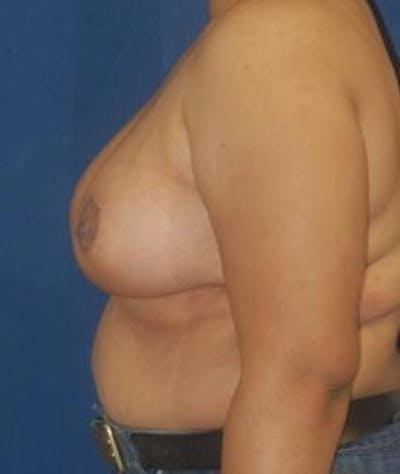 Breast Reduction Gallery - Patient 4861655 - Image 4