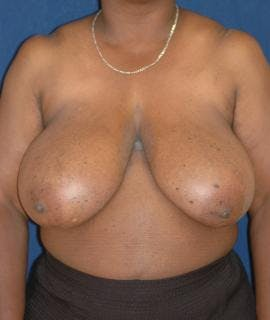 Breast Reduction Gallery - Patient 4861657 - Image 1