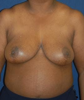Breast Reduction Gallery - Patient 4861657 - Image 2