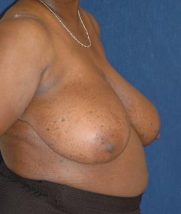 Breast Reduction Gallery - Patient 4861657 - Image 3