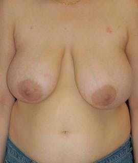 Breast Reduction Gallery - Patient 4861724 - Image 1