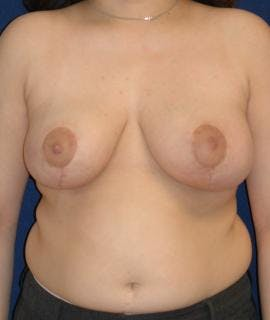 Breast Reduction Gallery - Patient 4861724 - Image 2