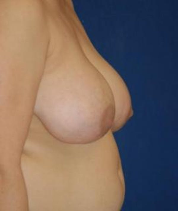 Breast Reduction Gallery - Patient 4861724 - Image 3