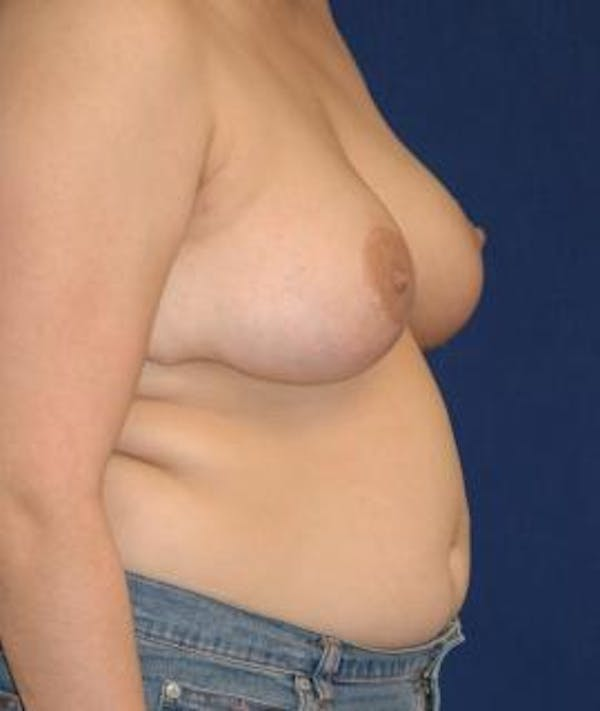 Breast Reduction Gallery - Patient 4861724 - Image 4