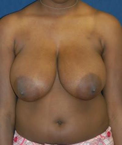 Breast Reduction Gallery - Patient 4861735 - Image 1