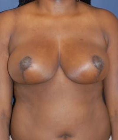 Breast Reduction Gallery - Patient 4861735 - Image 2