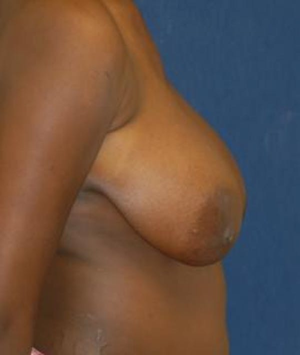 Breast Reduction Gallery - Patient 4861735 - Image 3