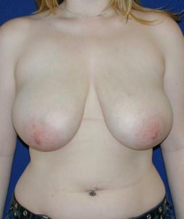 Breast Reduction Gallery - Patient 4861736 - Image 1
