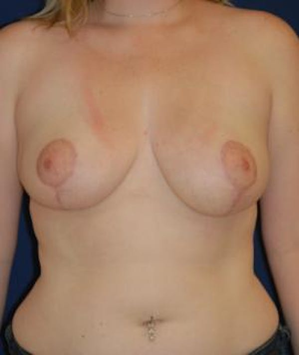 Breast Reduction Gallery - Patient 4861736 - Image 2