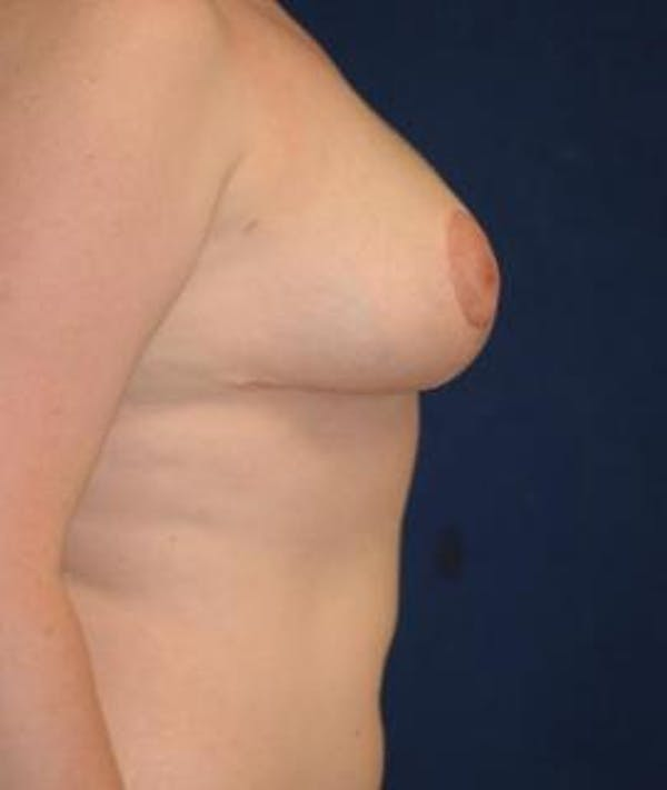 Breast Reduction Gallery - Patient 4861736 - Image 4