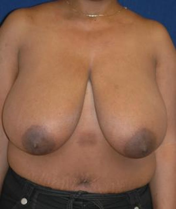 Breast Reduction Gallery - Patient 4861737 - Image 1