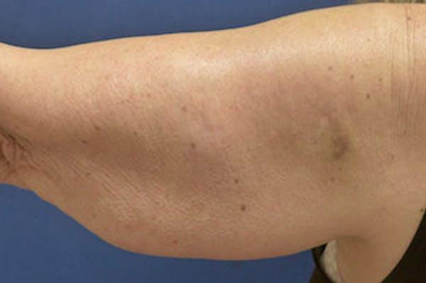 Arm Lift (Brachioplasty) Gallery - Patient 4861738 - Image 1