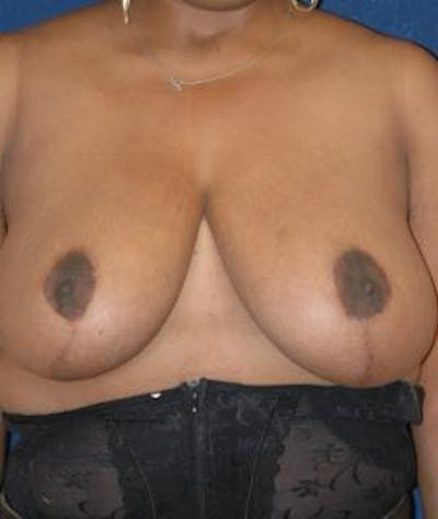 Breast Reduction Gallery - Patient 4861737 - Image 2