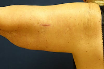 Arm Lift (Brachioplasty) Gallery - Patient 4861738 - Image 2