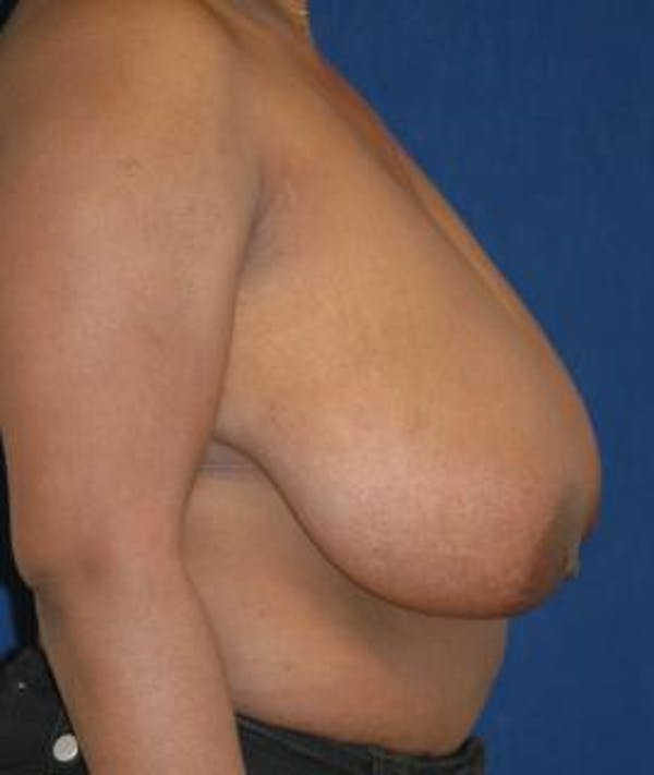 Breast Reduction Gallery - Patient 4861737 - Image 3