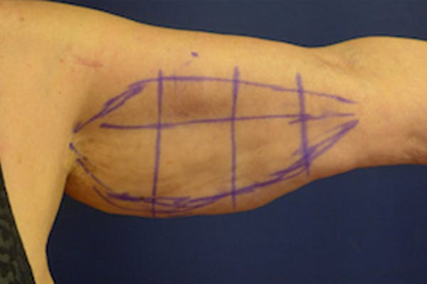 Arm Lift (Brachioplasty) Gallery - Patient 4861738 - Image 3