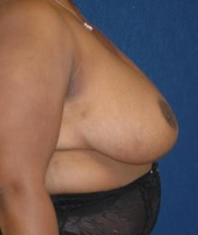 Breast Reduction Gallery - Patient 4861737 - Image 4