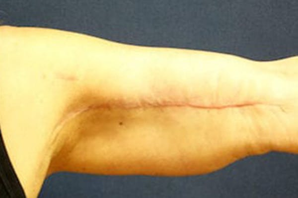 Arm Lift (Brachioplasty) Gallery - Patient 4861738 - Image 4