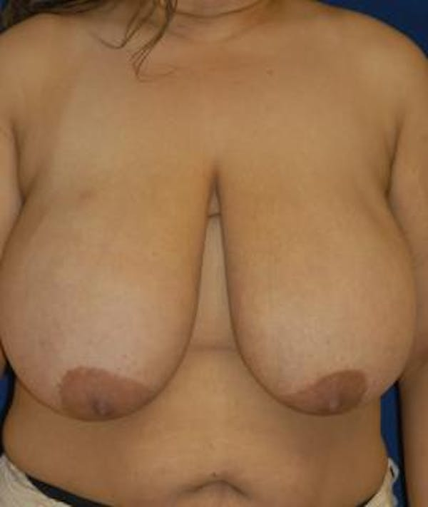 Breast Reduction Gallery - Patient 4861739 - Image 1