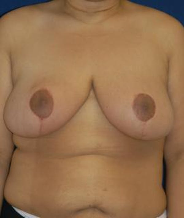 Breast Reduction Gallery - Patient 4861739 - Image 2