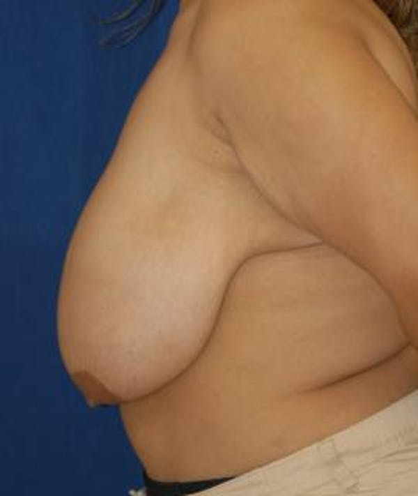 Breast Reduction Gallery - Patient 4861739 - Image 3